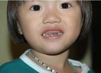 腐蚀牙齿最外层的牙釉质