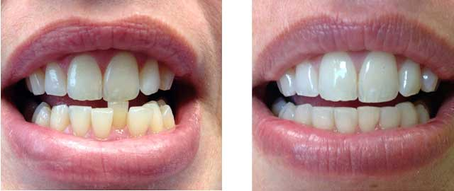 全口牙齿结构图片