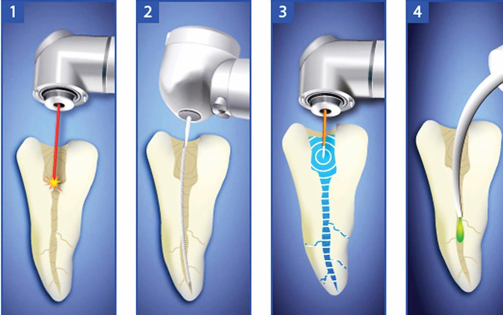 牙髓炎根管治疗步骤图片