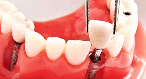 即刻种植牙是针对牙齿缺失的情况下马上种植牙的技术