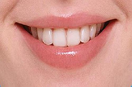 广州青少年牙齿正畸