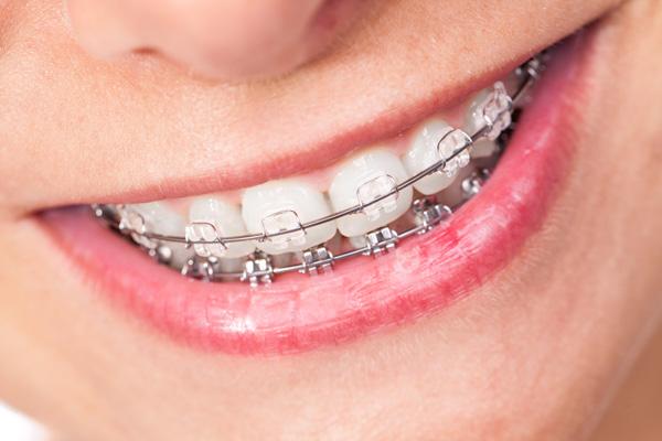 儿童牙齿矫正需要多少钱